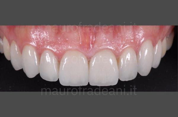 caso-clinico-faccette-dentali-su-paziente-con-discromia-dott-mauro-fradeani