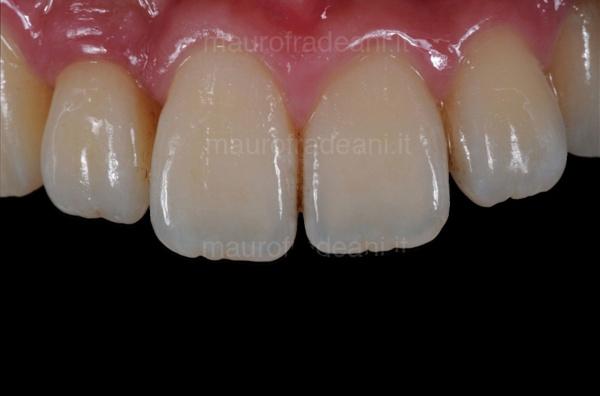 Dott. Fradeani impianto dentale nel settore anteriore