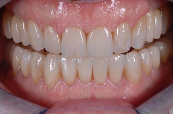 Riabilitazione estetico-funzionale per usura dentale Studio Dentistico Dott. Fradeani
