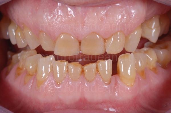 Caso clinico riabilitazione estetico-funzionale per usura dentale Dott. Fradeani
