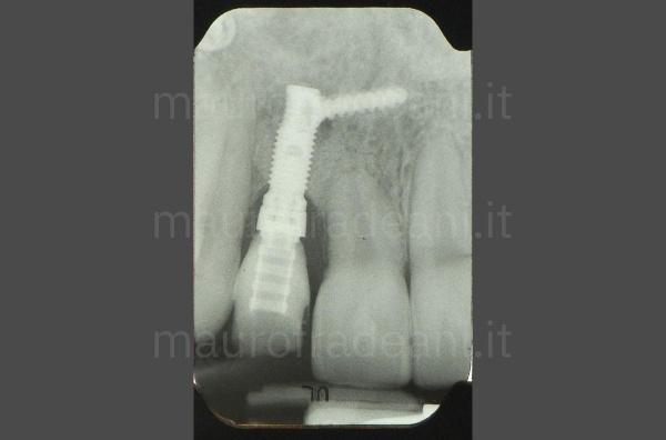 Caso clinico faccette in ceramica sestante anteriore con agenesia e marcata usura Dott. Fradeani