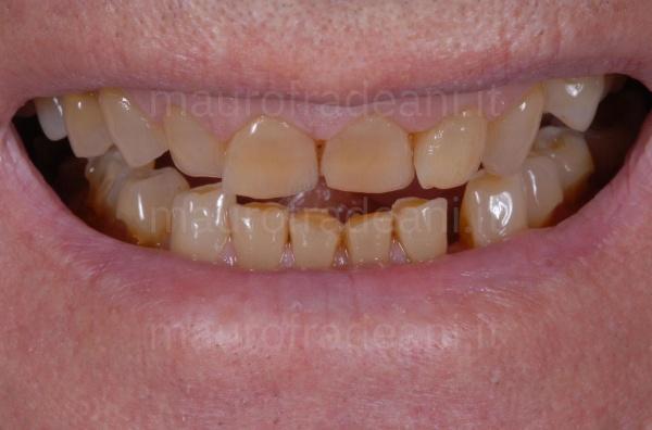 Caso clinico riabilitazione estetico-funzionale per necessità estetiche e usura dentale