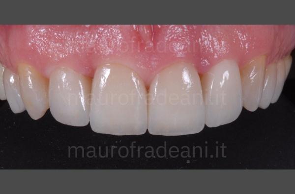 Studio Odontoiatria Fradeani caso clinico faccette denti superiori