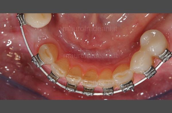 caso-clinico-ortodonzia-preprotesica-dott-mauro-fradeani-dopo
