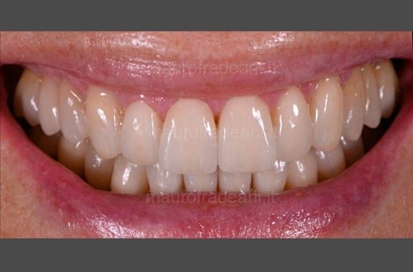 Dott. Fradeani riabilitazione estetico-funzionale severa compromissione dentale