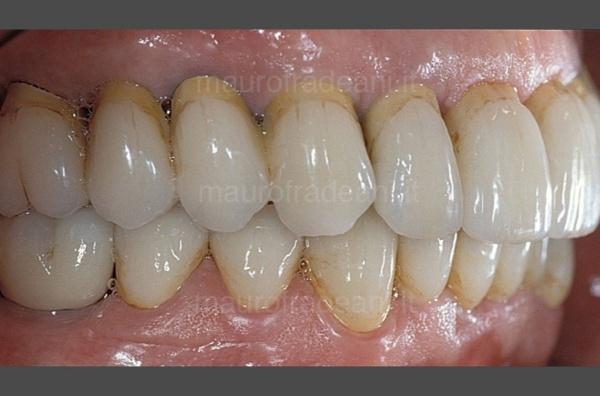 odontoiatria-estetica-su-impianti-mauro-fradeani-dopo-trattamento