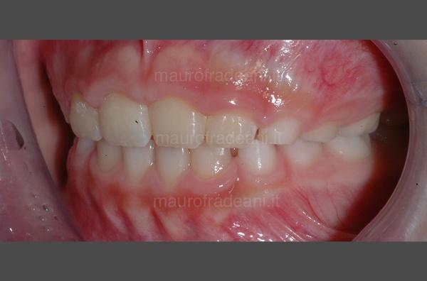 caso-clinico-ortodonzia-pediatrica-studio-fradeani