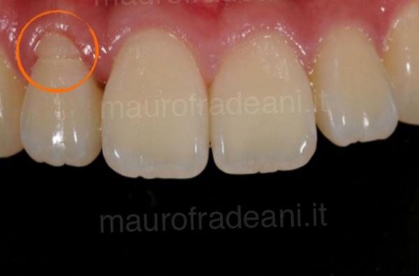 Caso clinico impianto dentale nel settore anteriore
