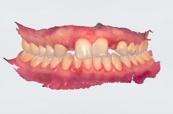 digital-dental-impression-scanner-fradeani-dental-clinic