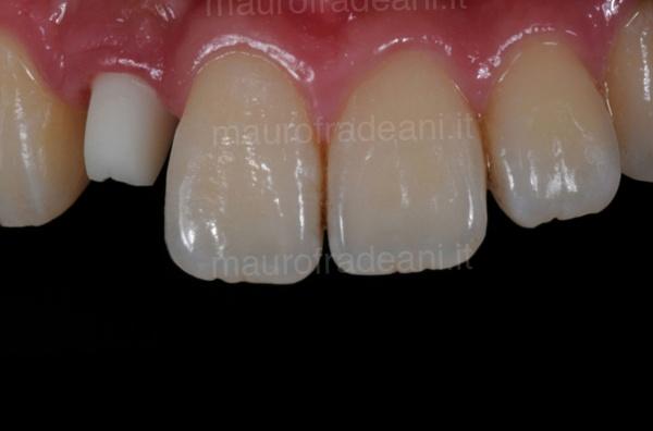 Dott. Fradeani caso clinico impianto dentale nel settore anteriore