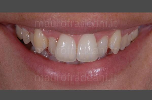 Caso clinico faccette dentali in ceramica settore antero-superiore disallineato