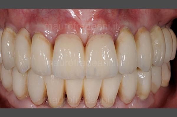 Caso clinico di implantologia guidata Studio Dentistico Fradeani Pesaro