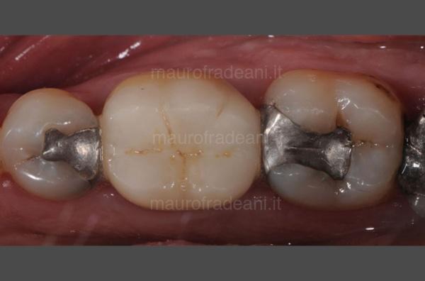 caso-clinico-odontoiatria-conservativa-dott-mauro-fradeani-pre-trattamento