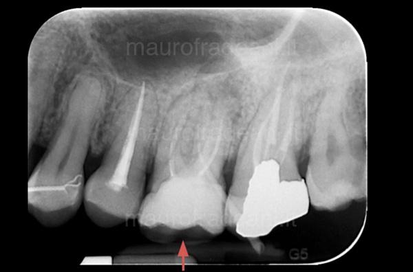 Caso clinico endodonzia: ritrattamento dente già devitalizzato