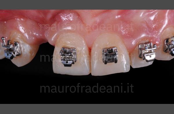 Caso clinico faccette in ceramica sestante anteriore con agenesia e marcata usura