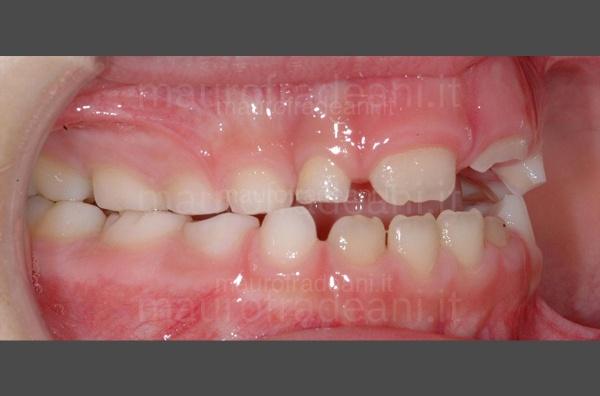 caso-clinico-ortodonzia-precoce-prima