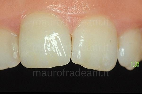 Dott. Mauro Fradeani corona in ceramica su dente anteriore già trattato