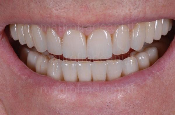 Studio Dentistico Dott. Fradeani riabilitazione estetico-funzionale per usura dentale