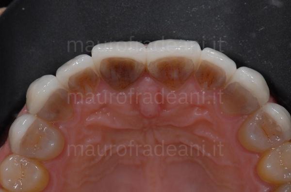 faccette-dentali-in-porcellana-per-discromie-caso-clinico-studio-odontoiatrico-fradeani