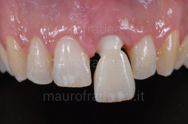 Dott. Fradeani Pesaro caso clinico corona ceramica su impianto dente anteriore