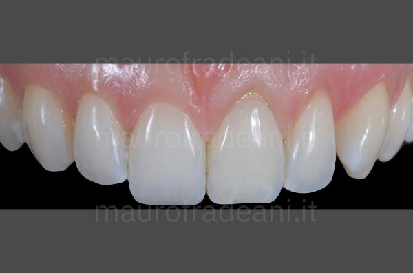 Caso clinico Dott. Fradeani sbiancamento dentale dente devitalizzato superiore