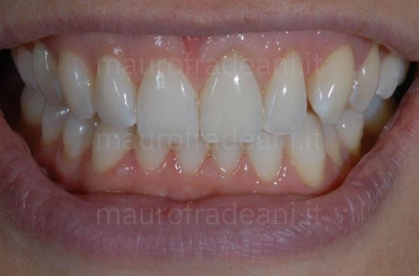 Ssbiancamento dentale dente devitalizzato superiore