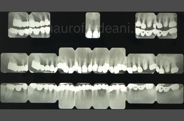 Dott. Mauro Fradeani caso clinico di implantologia guidata