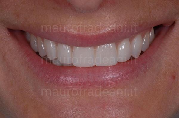 Riabilitazione estetico-funzionale per marcata e diffusa usura dentale Dott. Mauro Fradeani