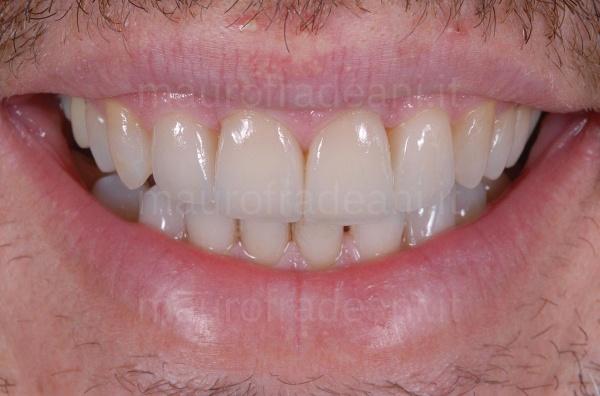Studio Odontoiatria Fradeani faccette denti superiori