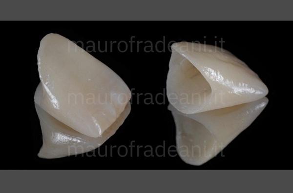 Dottor Mauro Fradeani corona ceramica su impianto dente anteriore