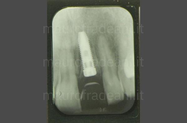 Corona ceramica su impianto dente anteriore Dottor Mauro Fradeani