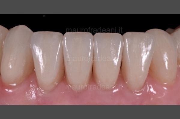 caso-clinico-ortodonzia-fissa-e-mobile-studio-dentistico-pesaro