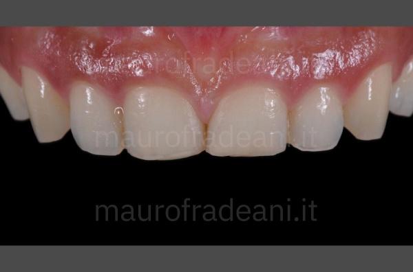 Caso clinico faccette dentali in ceramica per marcata usura dentale Dott. Mauro Fradeani
