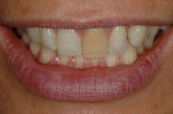 Caso clinico sbiancamento in studio dente devitalizzato superiore