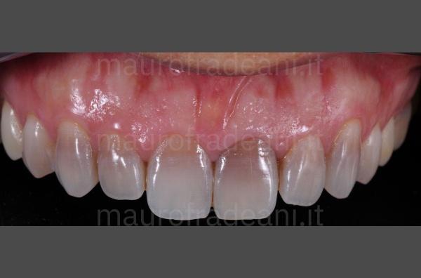 caso-clinico-faccette-dentali-su-paziente-con-discromia-dott-mauro-fradeani-pesaro