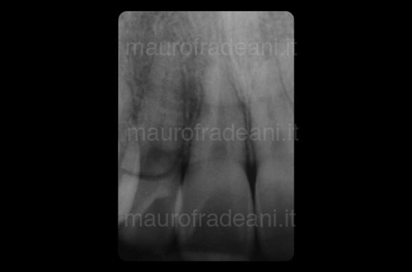 Caso clinico impianto dentale nel settore anteriore Dott. Fradeani
