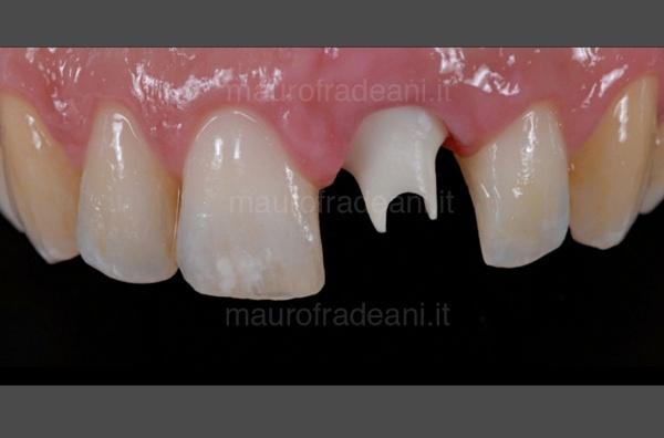 Dottor Mauro Fradeani caso clinico corona ceramica su impianto dente anteriore