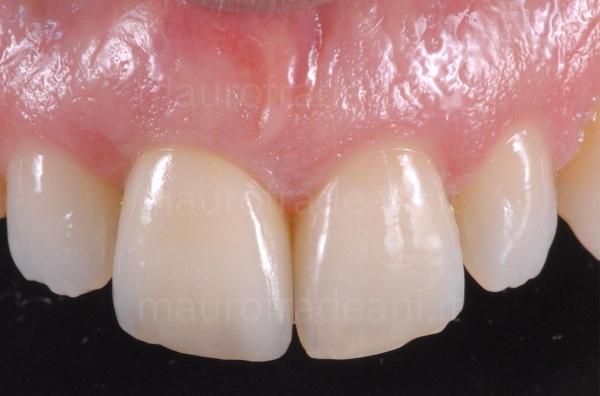 Dott. Fradeani caso clinico corona dentale in ceramica su impianto