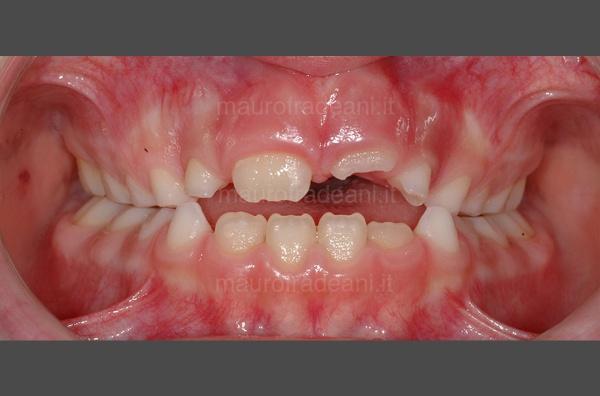 caso-clinico-ortodonzia-precoce-prima-e-dopo
