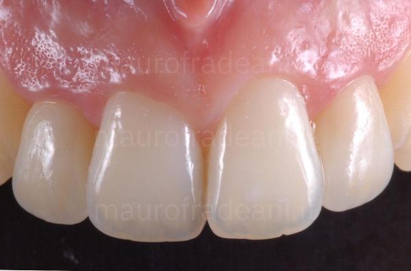 Dott. Fradeani caso clinico faccette dentali in ceramica settore antero-superiore disallineato