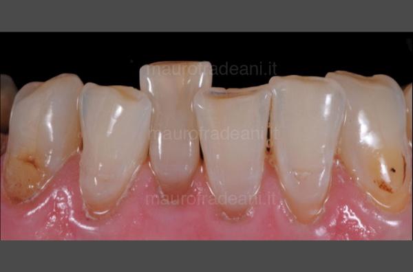caso-clinico-ortodonzia-preprotesica-dott-mauro-fradeani