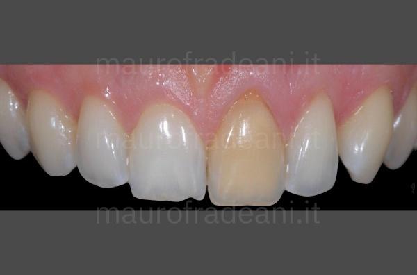 Caso clinico Dott. Fradeani sbiancamento in studio dente devitalizzato superiore