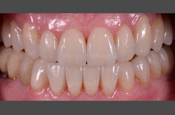Riabilitazione estetico-funzionale severa compromissione dentale Dott. Fradeani