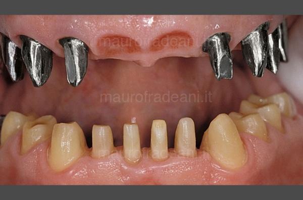caso-clinico-di-riabilitazione-estetico-funzionale-su-impianti-dentali-fradeani