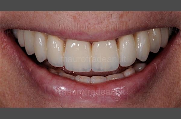 Studio Dentistico Fradeani Pesaro - Caso clinico di implantologia dentale guidata
