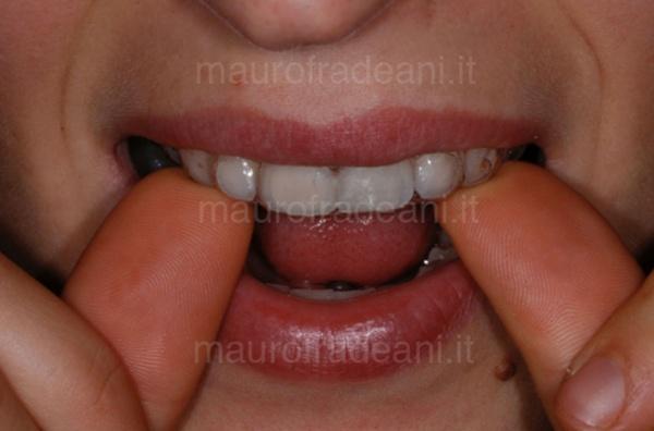 Caso clinico sbiancamento dentale domiciliare Dott. Fradeani