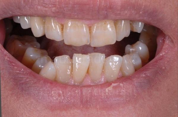 caso-clinico-ortodonzia-paziente-adulto-studio-dentistico-fradeani