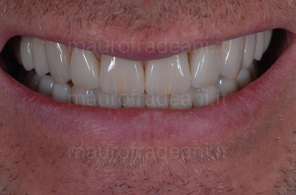 Dott. Fradeani faccette in ceramica per eccessivi spazi tra i denti