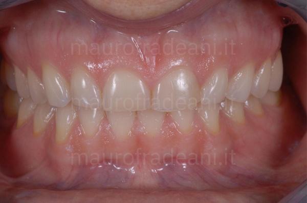 Caso clinico riabilitazione estetico-funzionale per marcata e diffusa usura dentale Dott. Fradeani