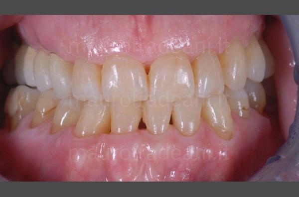 caso-clinico-apparecchio-ortodontico-paziente-adulto-dott-mauro-fradeani